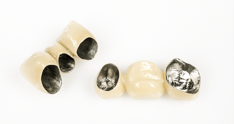 保険診療(銀歯)の問題点
