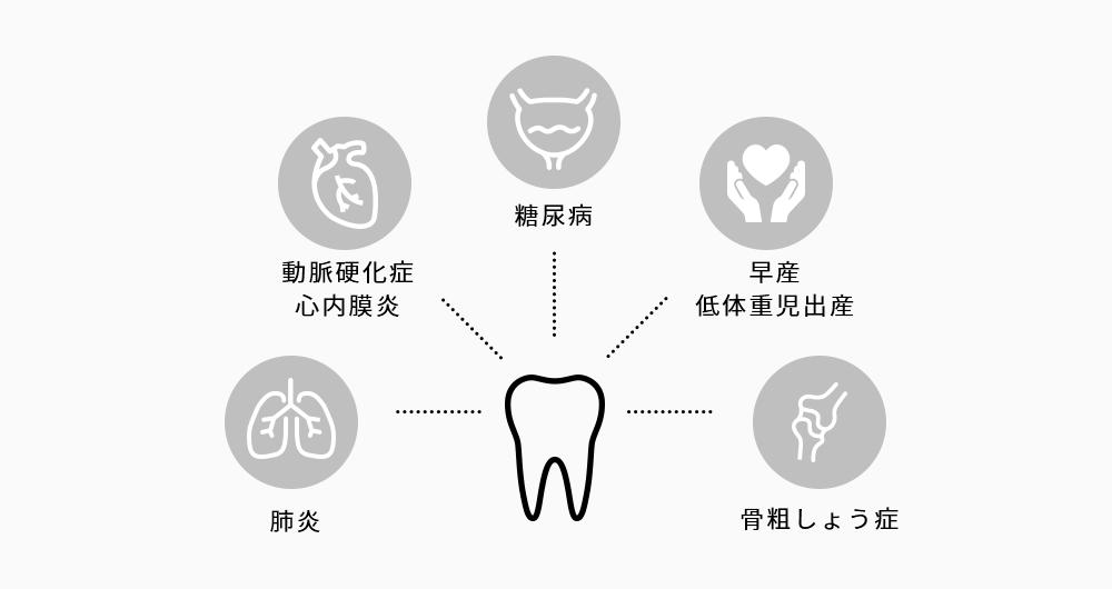 歯周病と全身の関係性