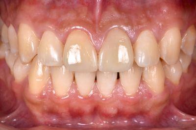 before オールセラミッククラウンと<br>ダイレクトボンディングによる<br>歯の形態と色調の改善