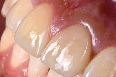 after オールセラミッククラウンと<br>ダイレクトボンディングによる<br>歯の形態と色調の改善