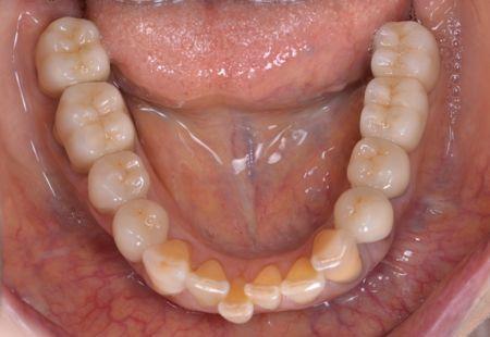 after 精密義歯及びインプラント<br>セラミッククラウン修復