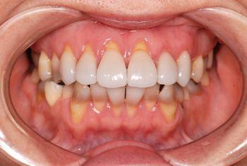 before ラミネートベニア修復による<br>変色歯の改善