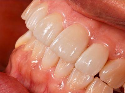after ラミネートベニア修復による歯の角度及び破折の改善