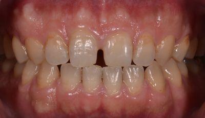 before 前歯部の正中離開をコンポジットレジンにて修復