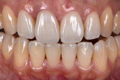 before オールセラミック修復による<br>歯の色調と形態の改善