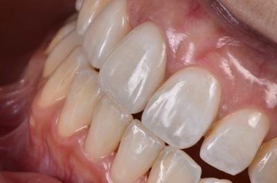 after オールセラミック修復による<br>歯の色調と形態の改善