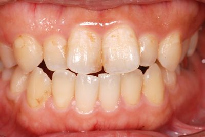 before 前歯部の複数箇所にわたるコンポジットレジン治療