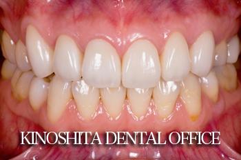 before オールセラミック修復による<br>歯の色調及び、形態の改善