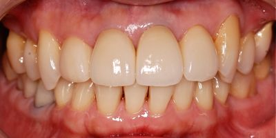 before 前歯部のオールセラミッククラウン修復
