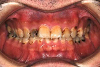 before 全顎的な虫歯治療と前歯部のラミネートベニア修復