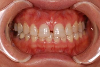 before オールセラミック修復による<br>歯の色調、形態、噛み合わせの総合治療