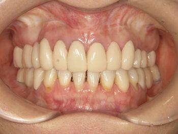 before インプラントと外科矯正を含めた全顎的な審美修復