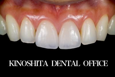 after セラミッククラウンによる<br>歯の形態及び色調改善