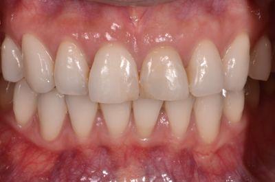 before セラミッククラウンによる<br>歯の形態及び色調改善