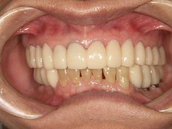 before インプラントを含めた全顎的な審美修復