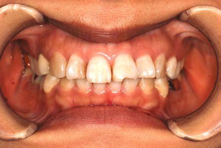 before ラミネートベニア修復による歯の角度及び破折の改善
