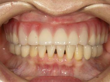 before 精密審美義歯およびインプラント<br>セラミッククラウン修復