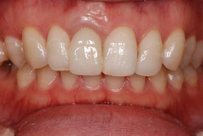 before セラミッククラウンの形態色調改善<br>及び歯肉整形隣接部分の<br>コンポジットレジン充塡