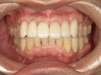 after 前歯部の歯頚ラインの改善とオールセラミッククラウン修復
