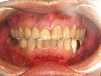 before 前歯部の歯頚ラインの改善とオールセラミッククラウン修復
