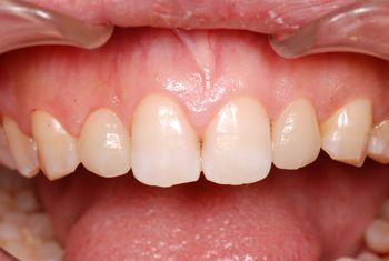 before ラミネートベニア修復による歯の大きさの改善