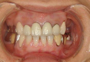 before インプラントを含めた全顎的なセラミック修復