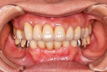 before 上下前歯部のセラミックブリッジ修復