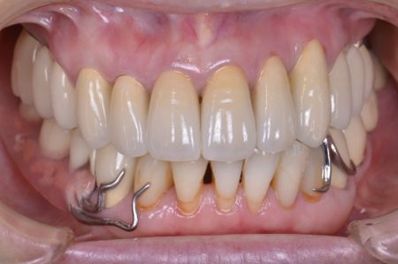 before セラミッククラウン及び精密部分入れ歯治療