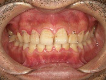 before ラミネートベニア修復による虫歯と歯の角度の改善