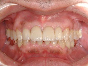 before 前歯部のセラミックブリッジ修復